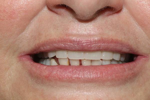 Denture Experts Perth - Before and After Photos - Total Denture Care