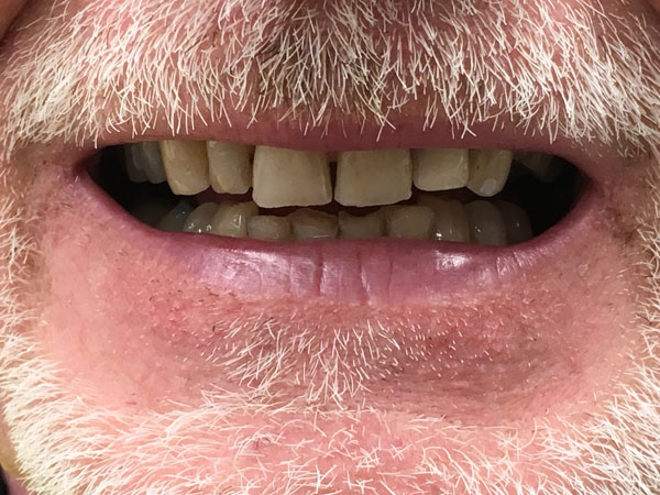 Partial Dentures in Perth - Before and After Photos - Total Denture Care