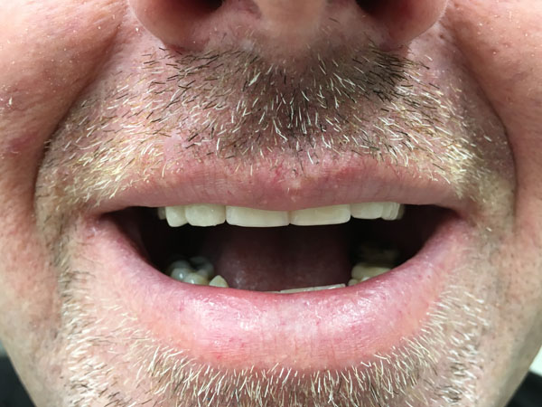 Best Dentures Clinic Perth - Before and After Photos - Total Denture Care