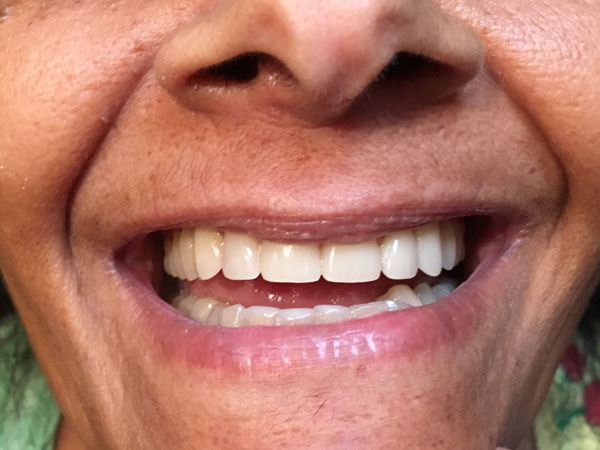 Emergency Dentures in Perth - Before and After Photos - Total Denture Care