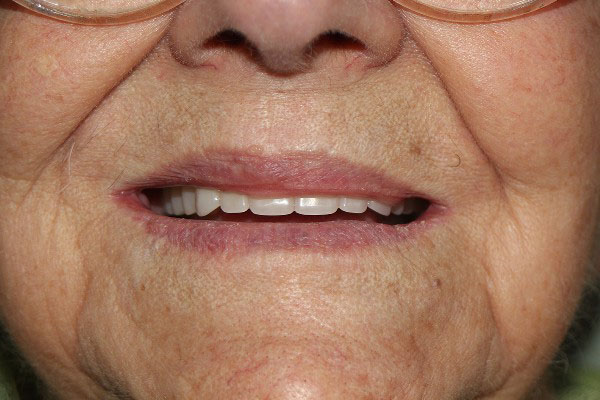 Denture Repair Perth - Before and After Photos - Total Denture Care
