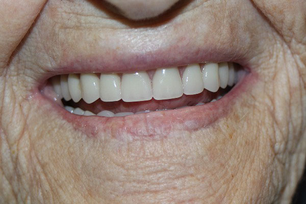 Best Denture Clinic Perth - Before and After Photos - Total Denture Care