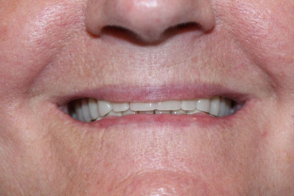 Denture Clinics in Perth - Before and After Photos - Total Denture Care