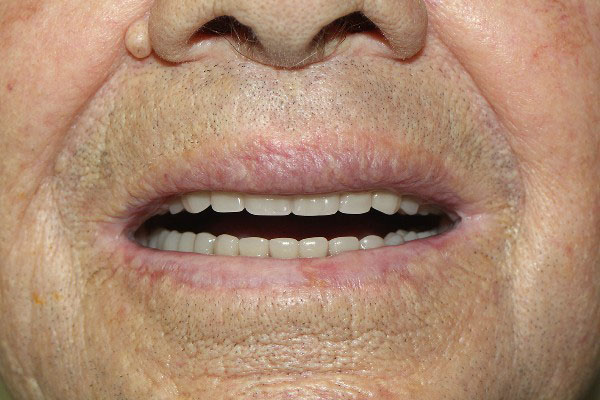Best Dentures Repair in Perth - Before and After Photos - Total Denture Care