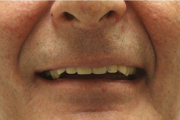 Best Denture Specialist in Perth - Before and After Photos - Total Denture Care