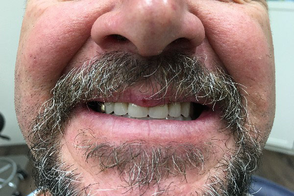 Mobile Denture Clinic in Perth - Before and After Photos - Total Denture Care