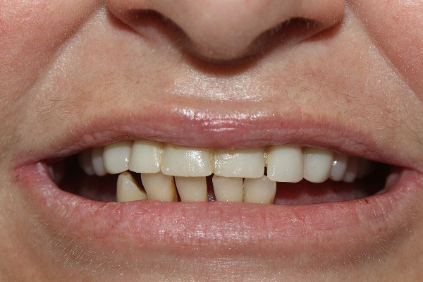 Denture Specialist Perth - Before and After Photos - Total Denture Care