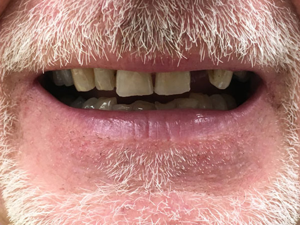 Partial Dentures Perth - Before and After Photos - Total Denture Care