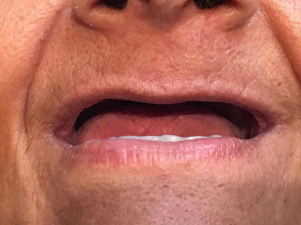Emergency Dentures Perth - Before and After Photos - Total Denture Care