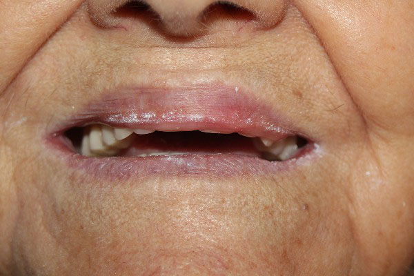 Denture Repairs Perth - Before and After Photos - Total Denture Care