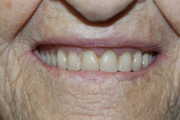 Denture Clinic Perth - Before and After Photos - Total Denture Care