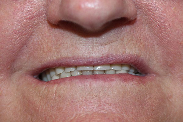 Best Denture Clinics in Perth - Before and After Photos - Total Denture Care