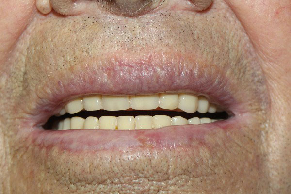 Best Denture Repair Perth - Before and After Photos - Total Denture Care