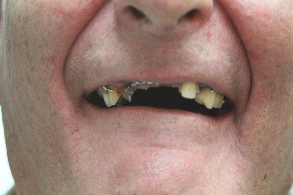 Best Denture Specialist Perth - Before and After Photos - Total Denture Care