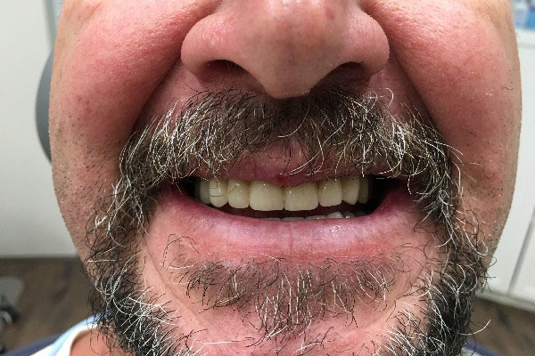 Mobile Denture Clinic Perth - Before and After Photos - Total Denture Care