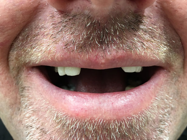 Emergency Denture Repair Perth - Before and After Photos - Total Denture Care
