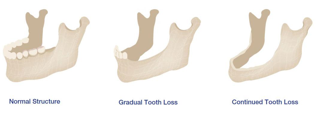 Denture Relines Perth - Total Denture Care